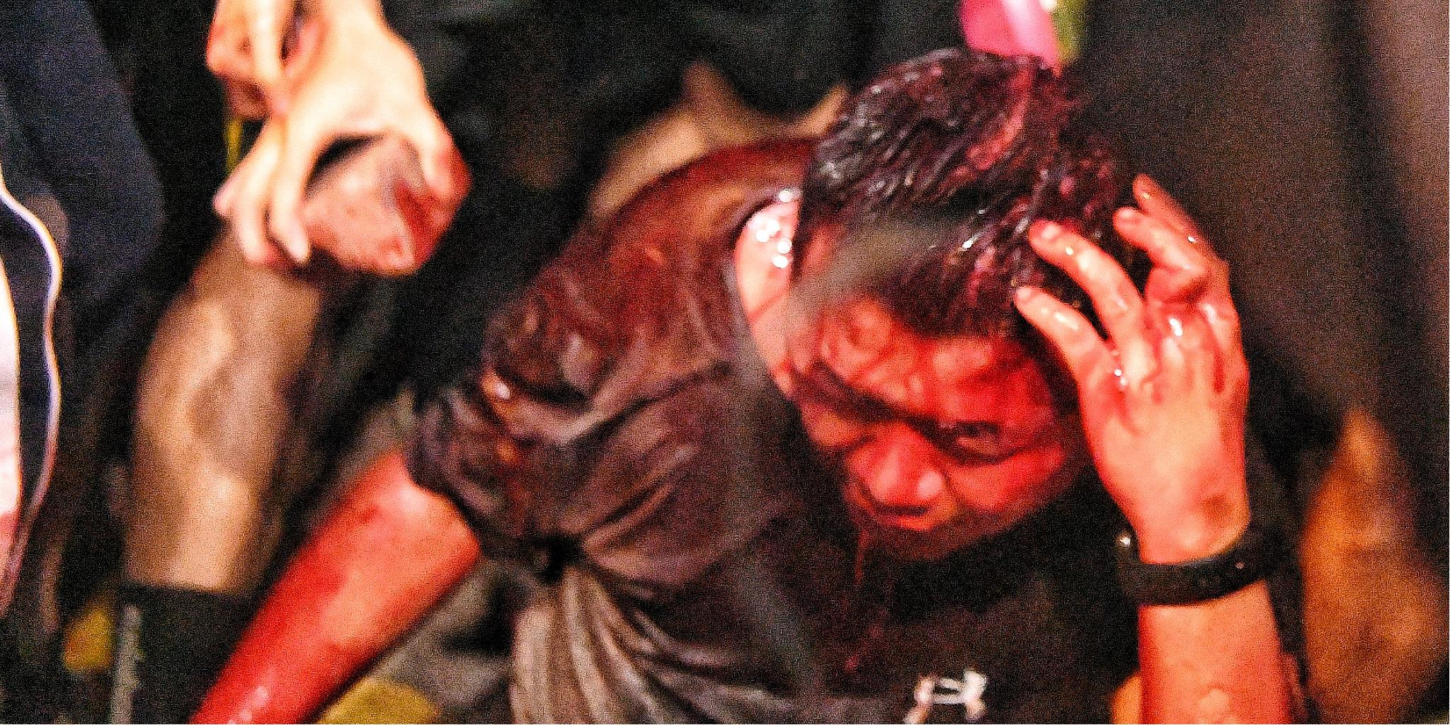 香港警方拘捕兩名男子 涉嫌去年11月襲擊內地遊客一案